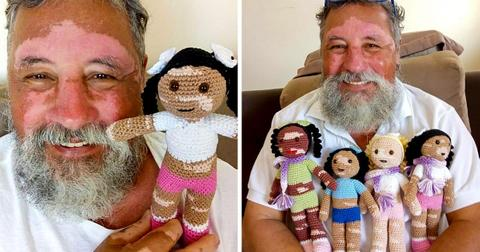 Grandfather With Vitiligo Knits Dolls For Kids With The Same Condition