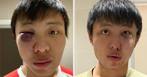 an-asian-student-in-london-said-he-assaulted-on-t-2-214-1583273539-3_dblbig-1583325410758.jpg
